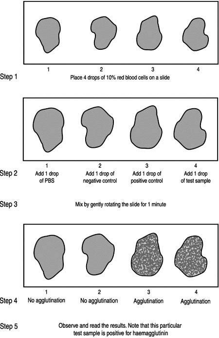 10  Haemagglutination test
