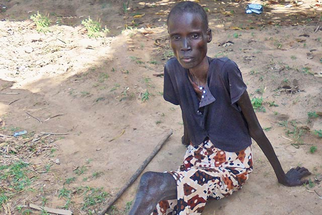 'I'm not sick, I'm hungry.' Fighting food insecurity in South Sudan